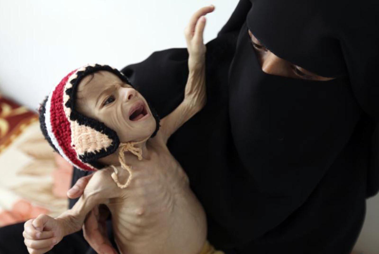 yemen-1-kopya-kopya.jpg